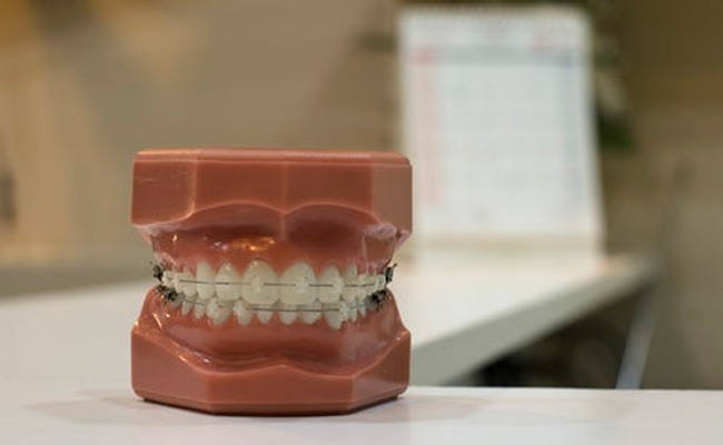 Knowing the Whole Shebang about 3D Dental Implants