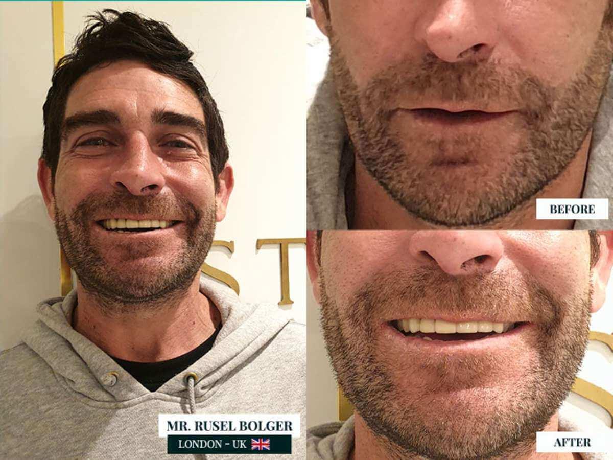 dental implants case