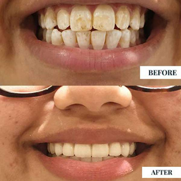 dental veneers near me Procedure, composite veneers cost