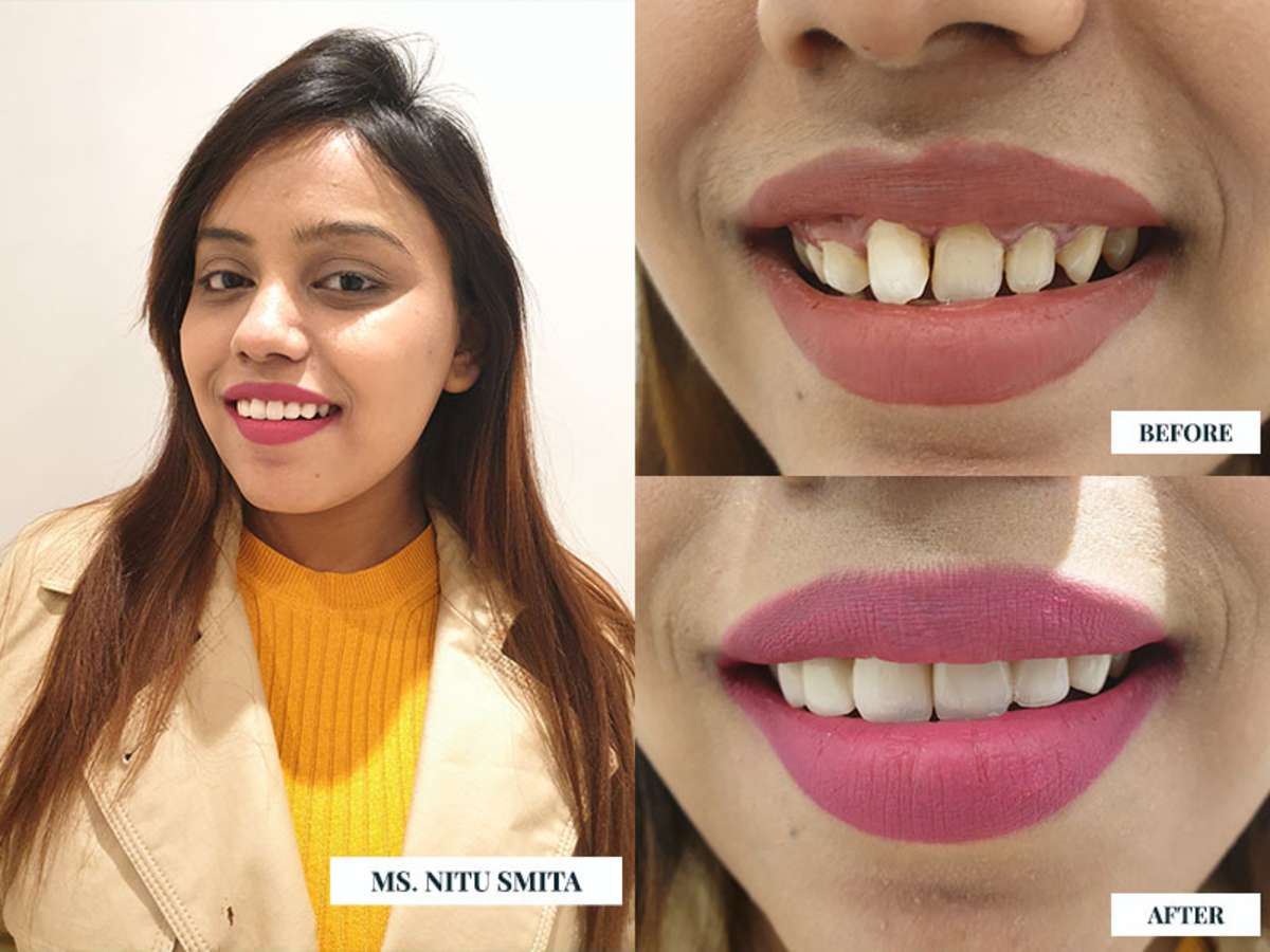 teeth whitening cost and Procedure, Teeth Cleaning