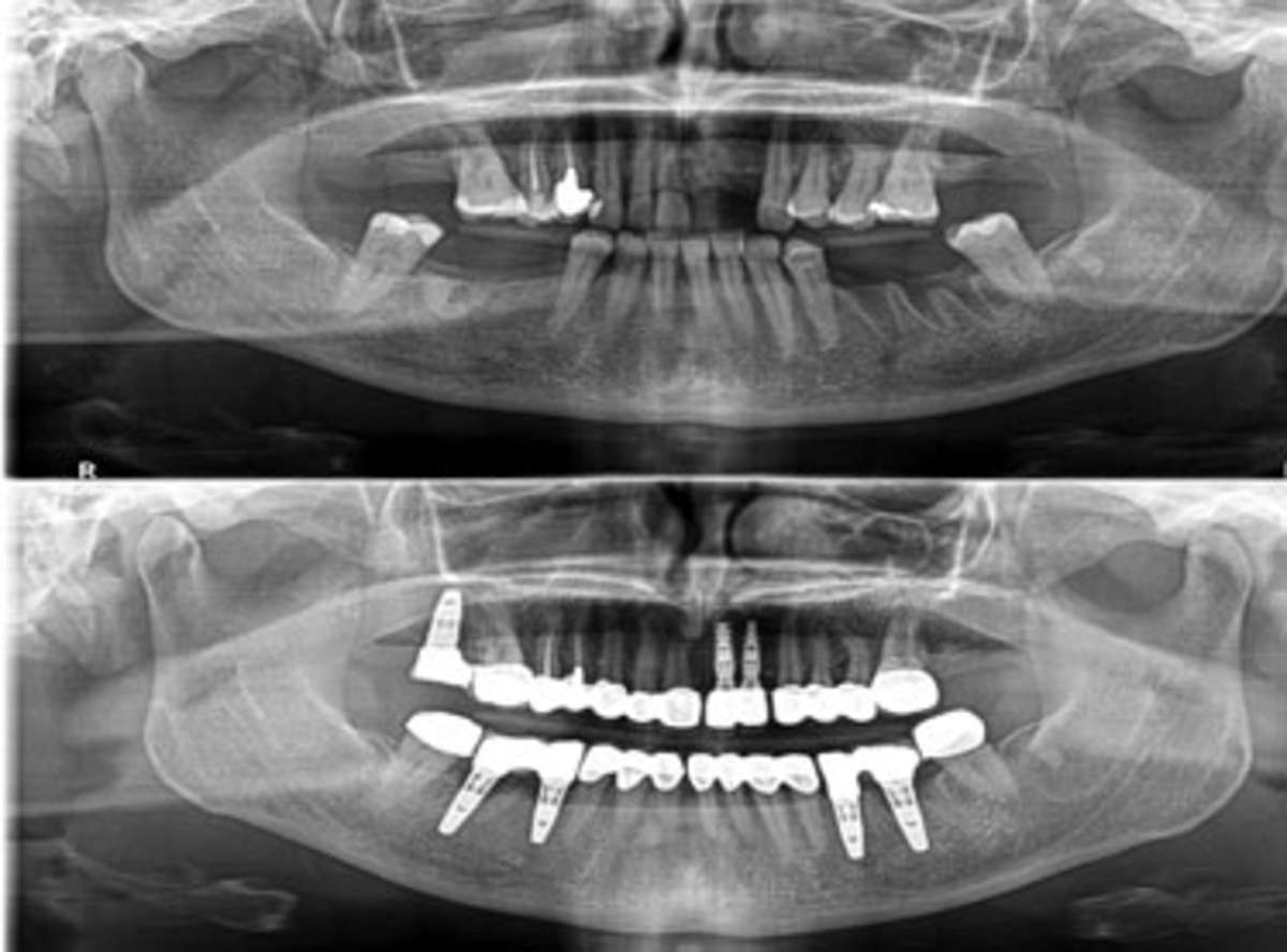 Multiple Dental Implants near me