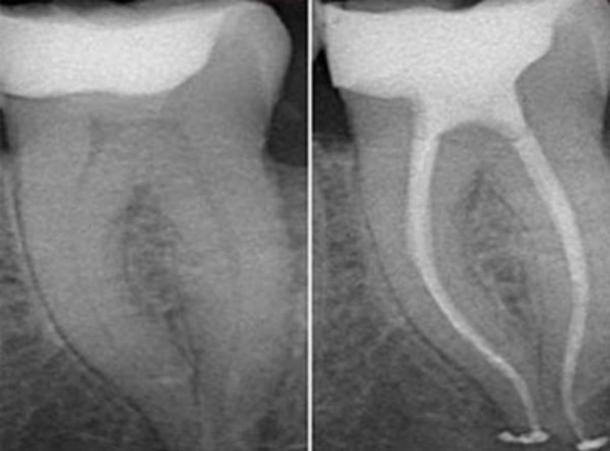 paineless root canal in south delhi, tooth pain treatment