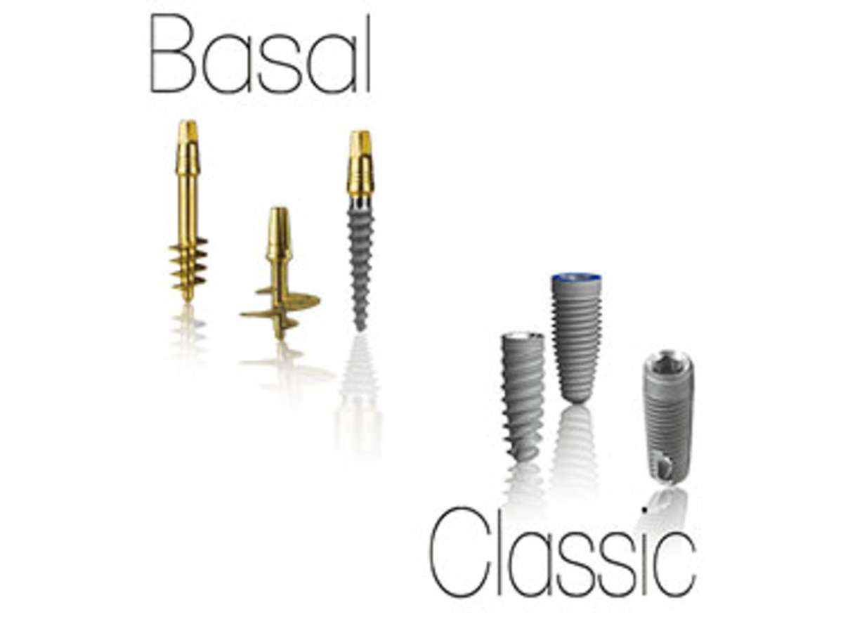 basal Dental Implant near me in Delhi