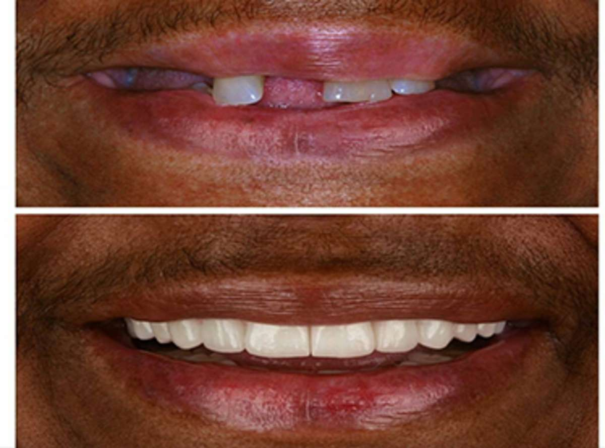 Unattractive Smile treatment near me