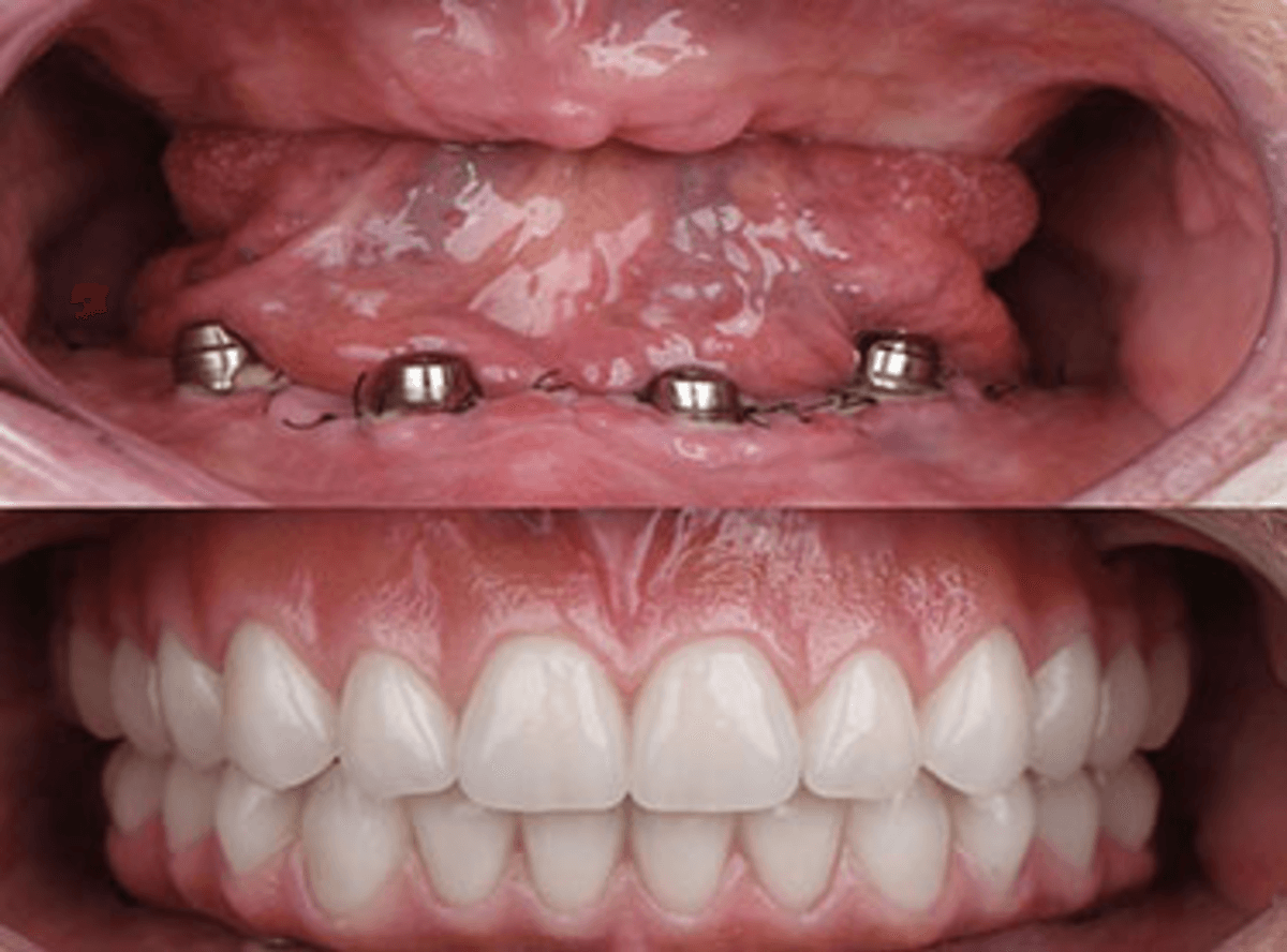 Immediate dentures treatment in 1 visit near me