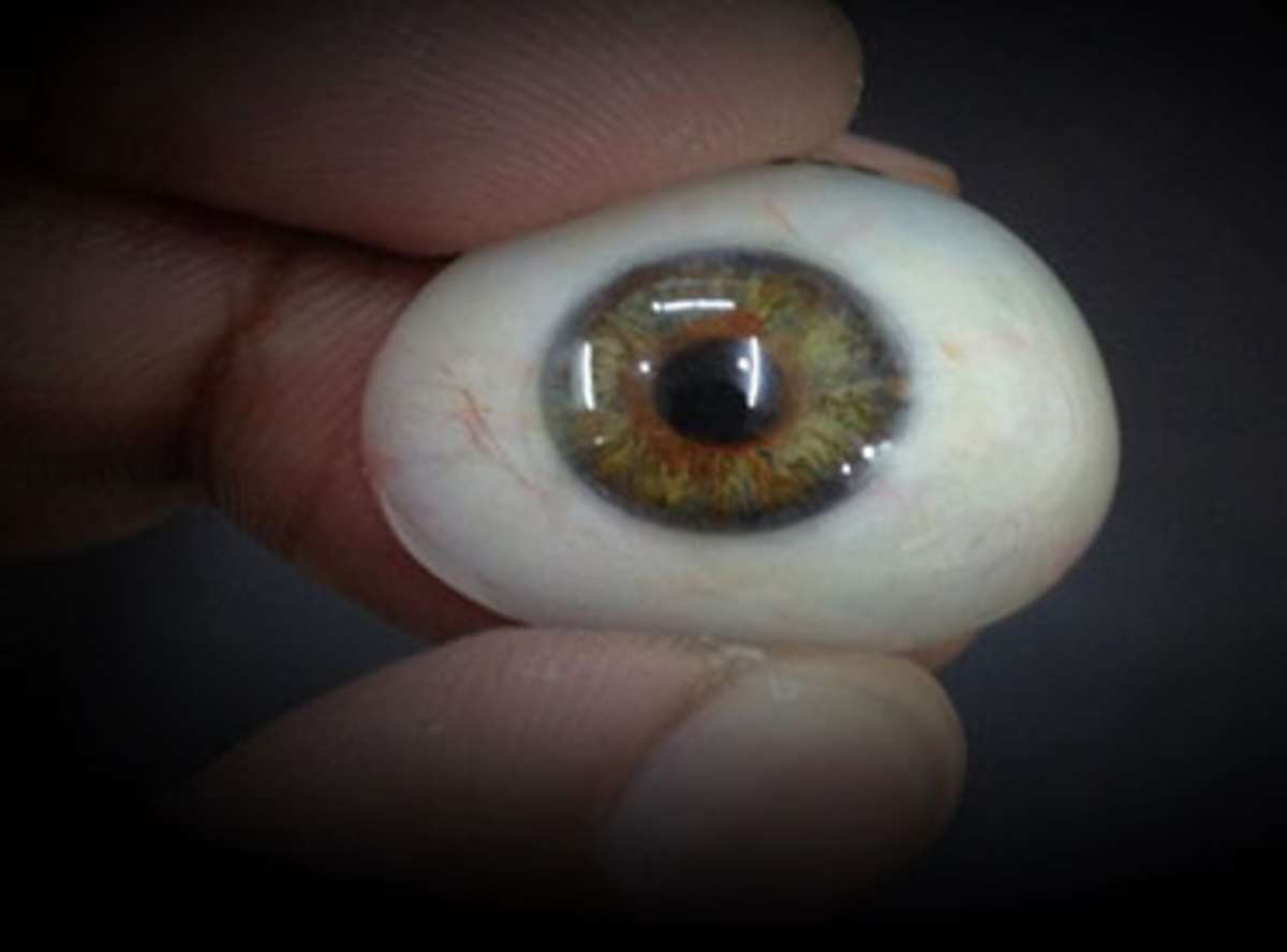 Artificial Eye Prosthesis in India