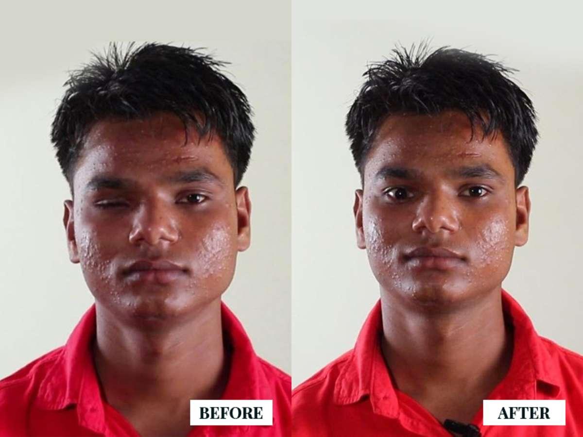 Prosthetic Eye, Ocular Prosthetics