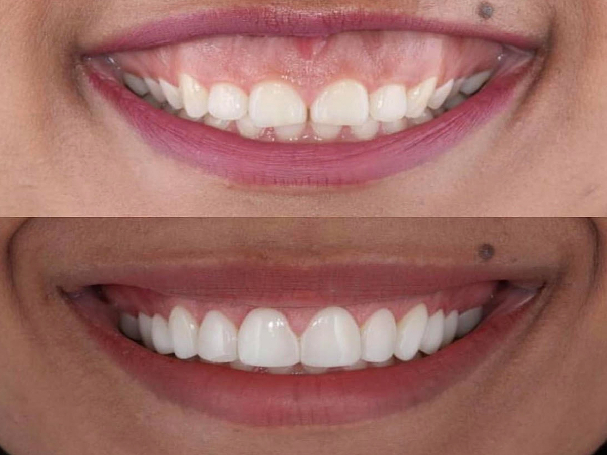Gummy Smile Correction near me