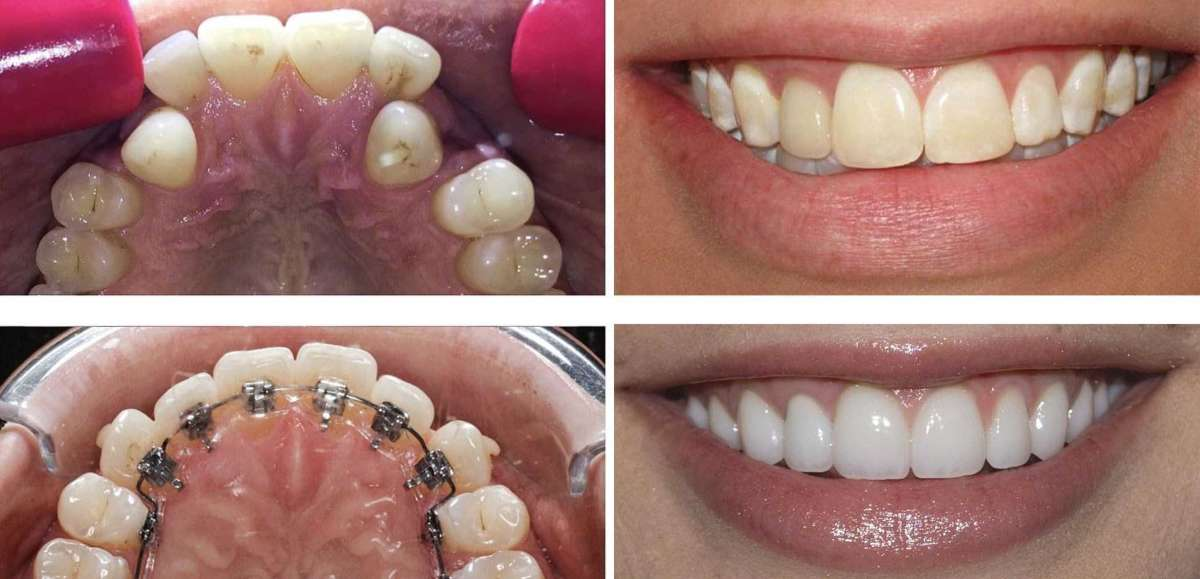 We are one of the best orthodontist dentist located in GK 1, South Delhi easily approachable from GK 2, Luteyn's Bunglow Zone, Kasturba Nagar, Greater Kailash, Panscheel, Saket, Hauz Khas, Malviya Nagar, Defence Colony, Vasant Kunj, Vasant Vihar, Green Park, Lajpat Nagar, Nehru Place, CR Park, Lodhi Colony, Jor Bagh, Golf Links, Shanti Niketan, Anand Niketan, Khan Market, Safdarjung, Jangpura, SDA Hauz Khas, Gulmohar Park, Kalkaji, New Friends Colony, East of Kailash, Sainik Farms, Nehru Park, Malcha Marg, Masjid Moth, Pushp Vihar and Sarita Vihar.