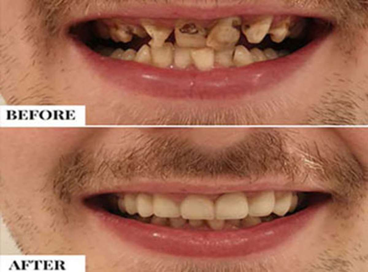 Malaligned/Crooked Teeth