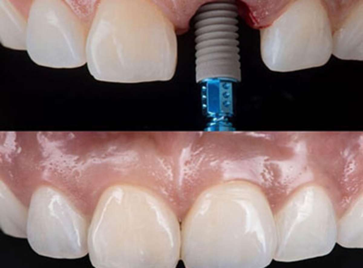 Single Tooth Implant Delhi India Single Dental Implant Cost Delhi India