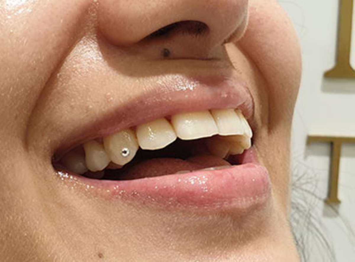 Tooth Jewellery dentist near me