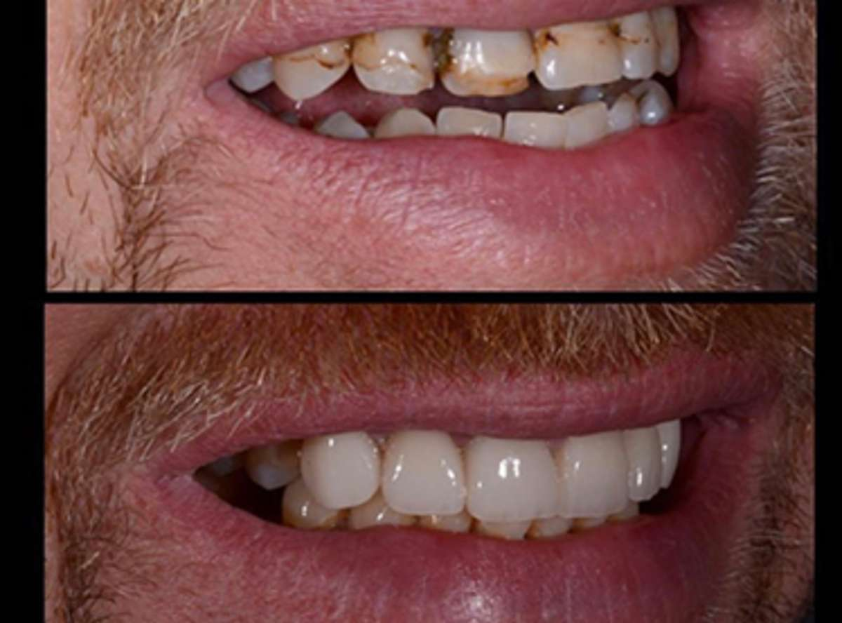 Bruxism (Teeth grinding) Treatment near me
