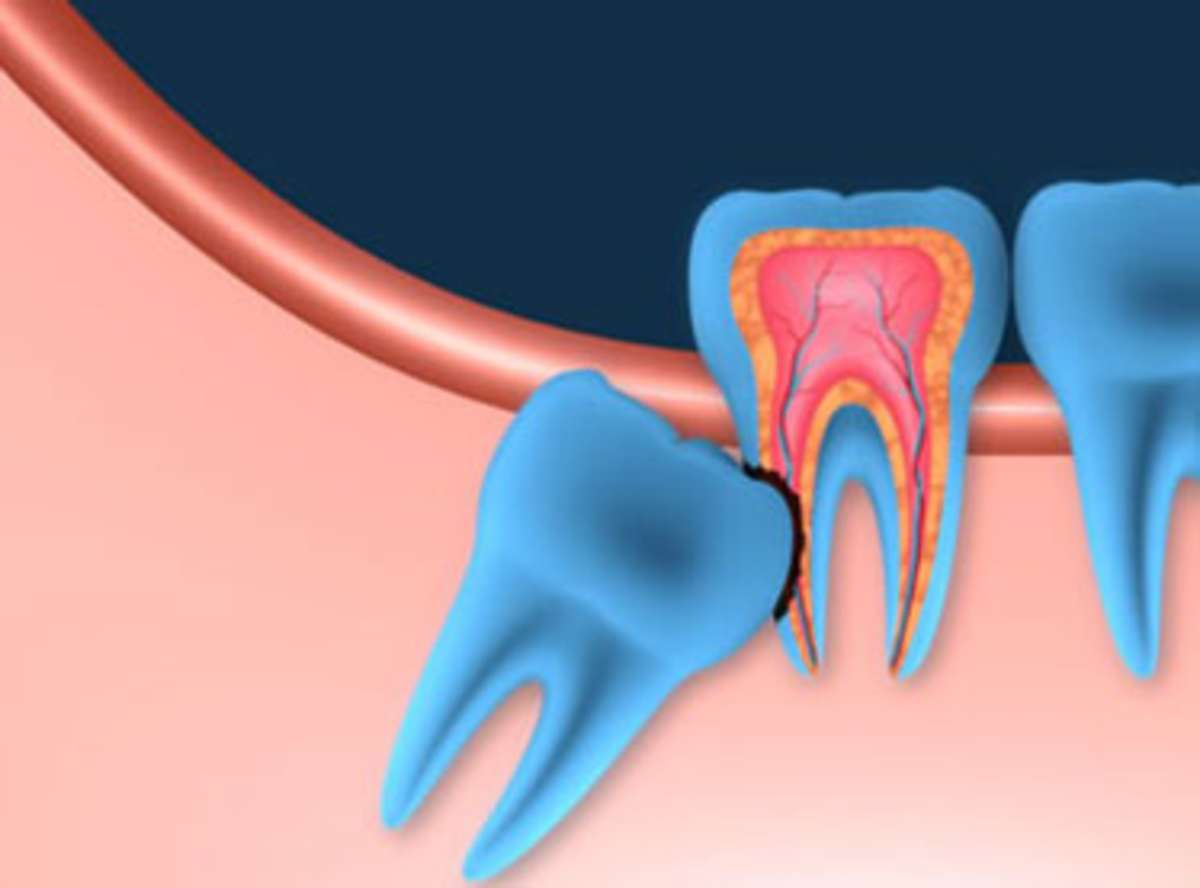 Paineless Wisdom Tooth Extraction Delhi India Laser Wisdom Teeth Third Molar Removal Cost South Delhi India