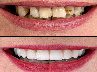 multispeciality dental clinic with cosmetic dentistry in india, best implantologist in delhi