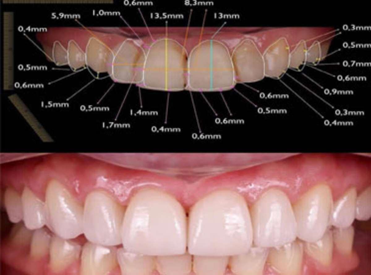 3D Smile Designing in India