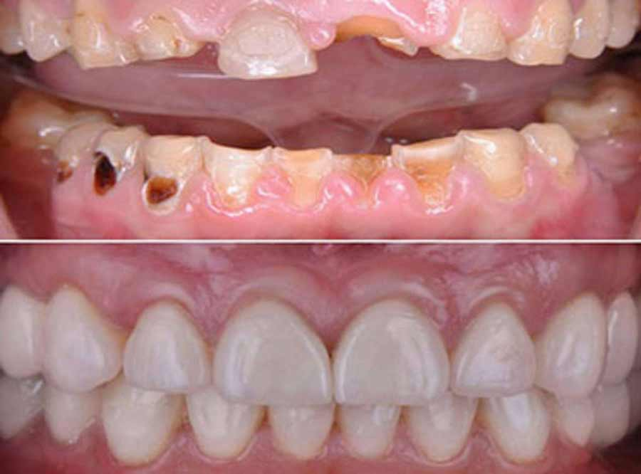 Tooth Decay treatment in delhi
