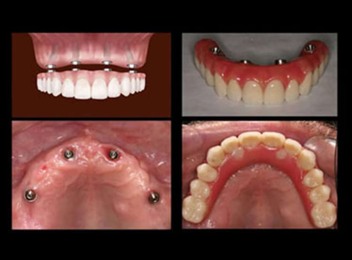 how much is all on 4 dental implants
