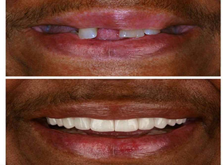 Unattarctive Smile correction in delhi