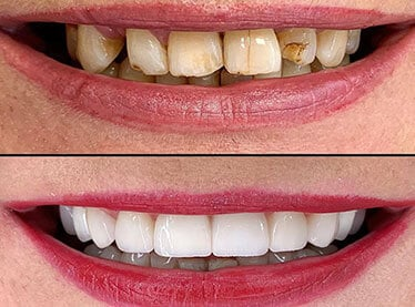 Cosmetic Dentistry treatment package