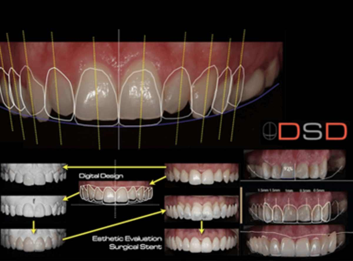 Digital Smile Designing in india