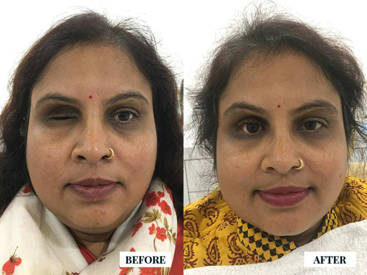 Artificial eye Prosthesis package in india