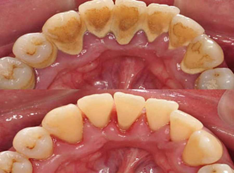 Periodontal Disease treatment and solution