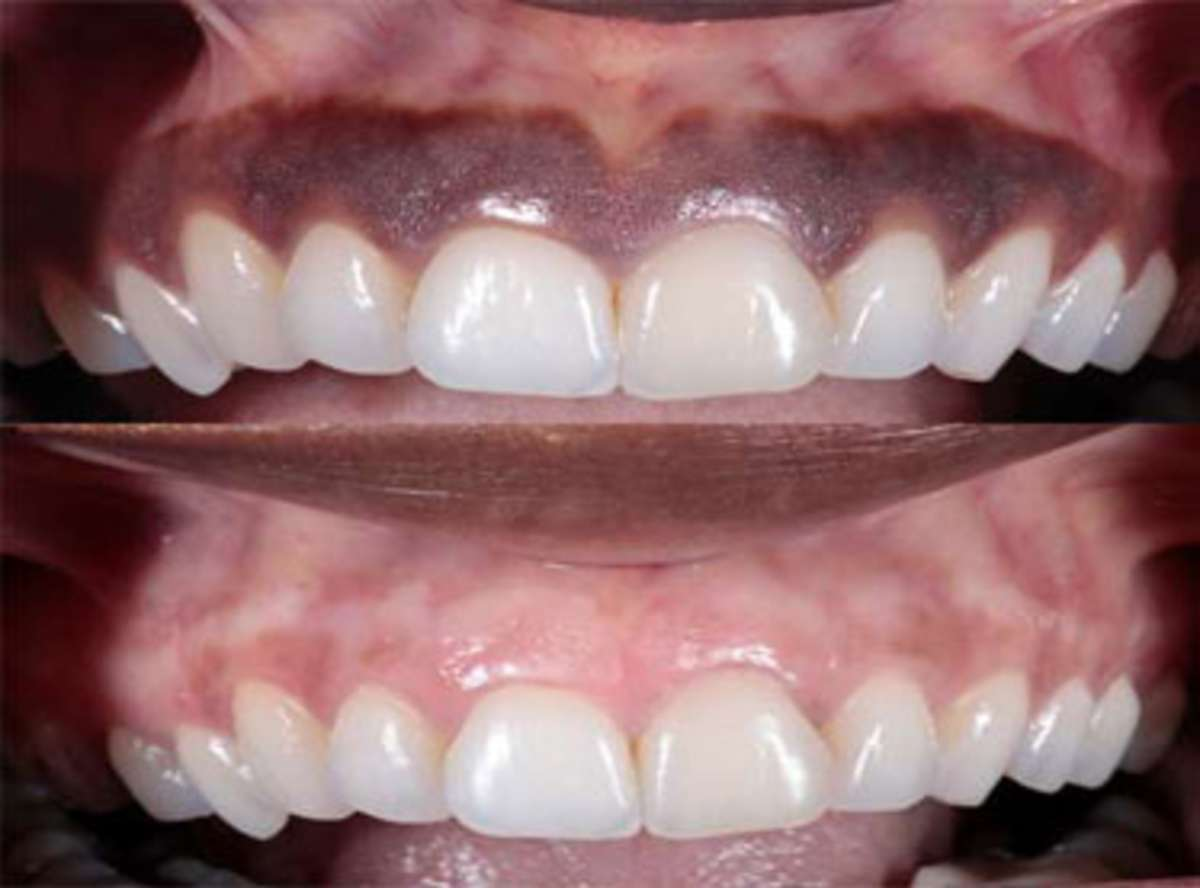 Gum Depigmentation treatment in india
