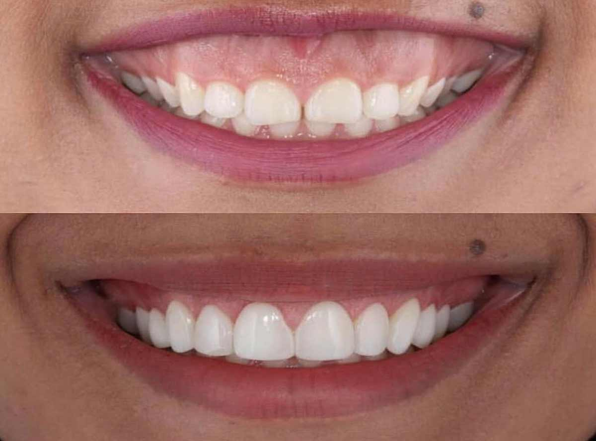 Gummy Smile correction