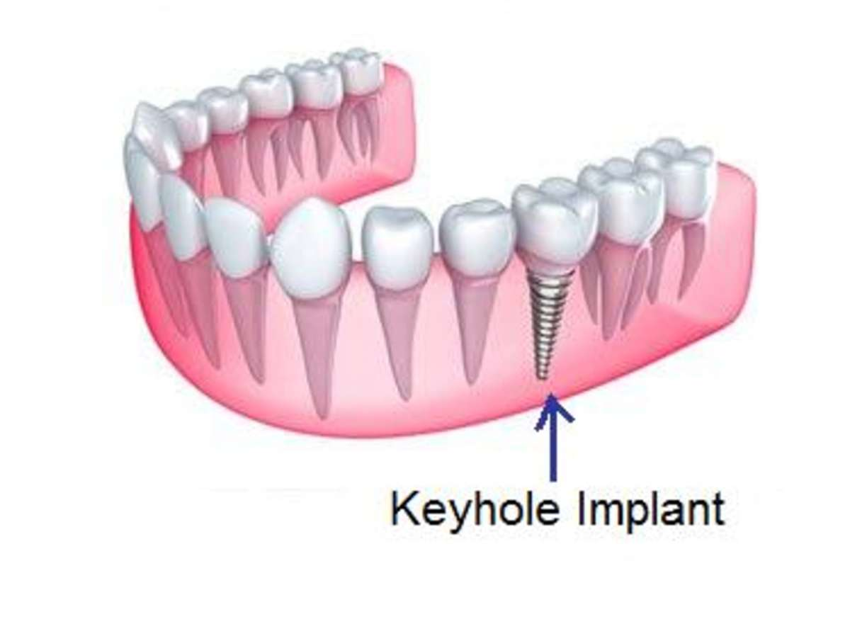 best Keyhole Dental Implants implantologist in india