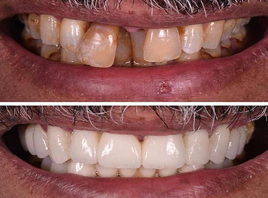 Loose Teeth solution