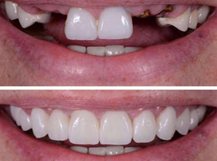 Missing Teeth treatment in india