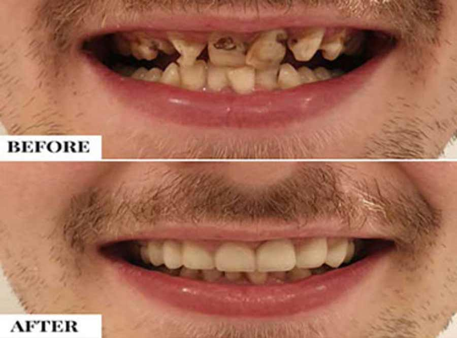 Malaligned teeth/Crooked Teeth treatment in delhi
