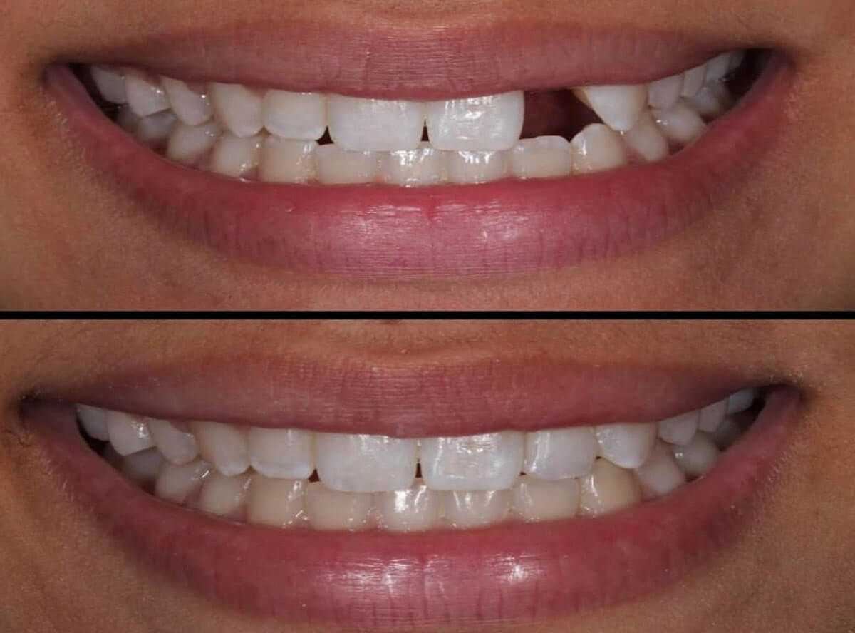 teeth gap closure treatment