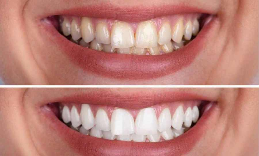 Discolored Teeth treatment in GK 1