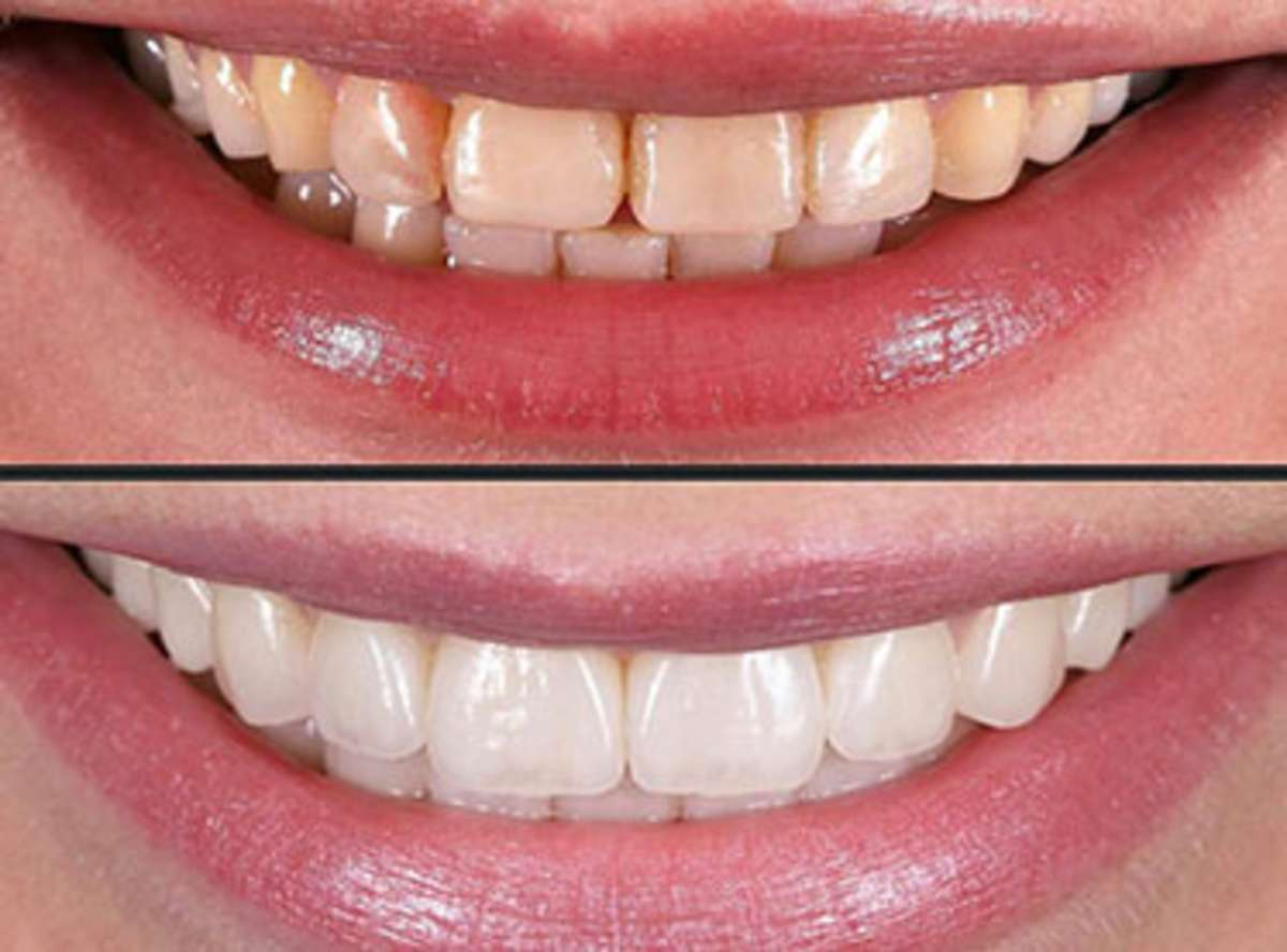 dental Veneers near me